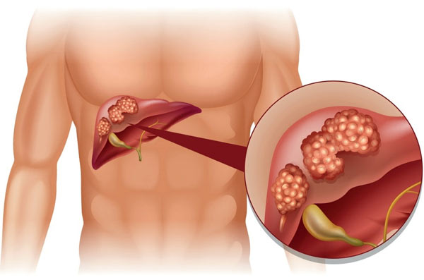 Learn About The Stages Of Liver Cancer